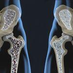 Wskazówki dietetyczne dotyczące profilaktyki i leczenia osteoporozy