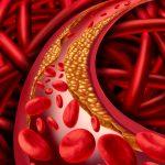 Dieta na obniżenie stężenia cholesterolu