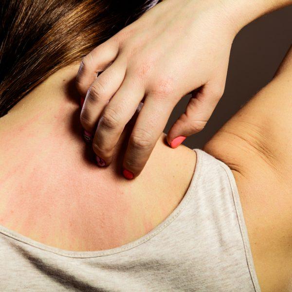 atopowe zapalenie skóry - AZS